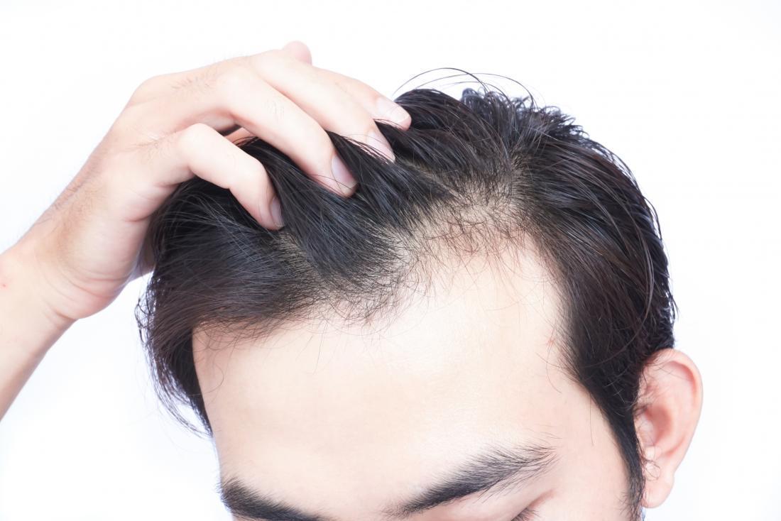 hair loss clinic richmond hill ontario